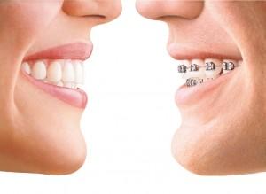 ortodoncia estética invisalign