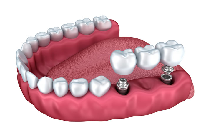 prostheses on dental implants barcelona