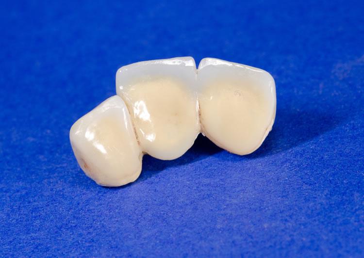 provisionales dentales Barcelona
