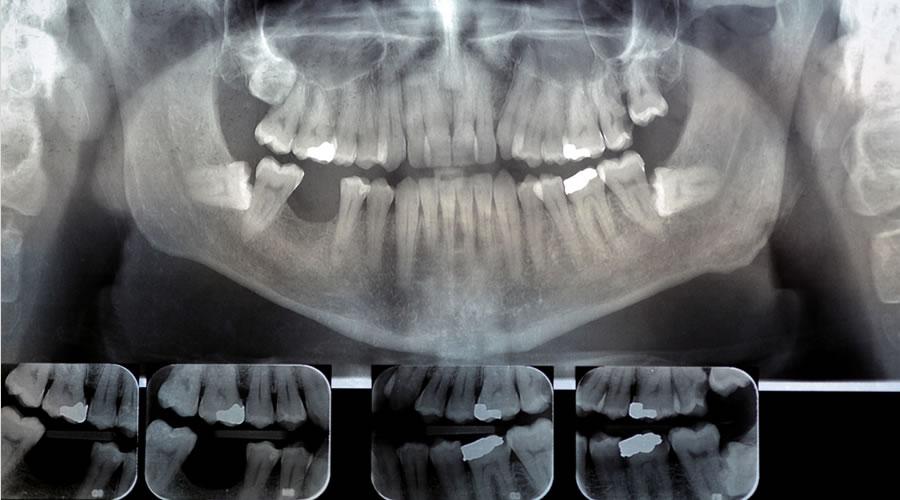 radiografía dientes mediante TAC 3D
