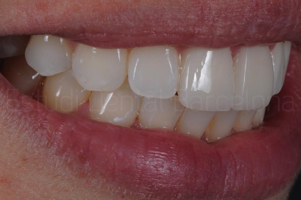 sonrisa con carillas dentales estética